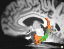 This brain image of a person with Parkinson's disease shows white matter connections (highlighted in green, blue and red) between two regions of the brain important for memory (highlighted in orange). Illustration by Jared Tanner. Rendering with TrackVis.