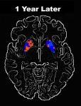 20160815-brains
