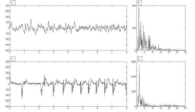 picture of EEG afterdischarge