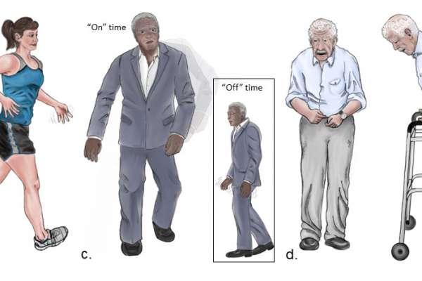 Image of Parkinson's Disease