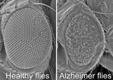 image of fly brain with and without alzheimer