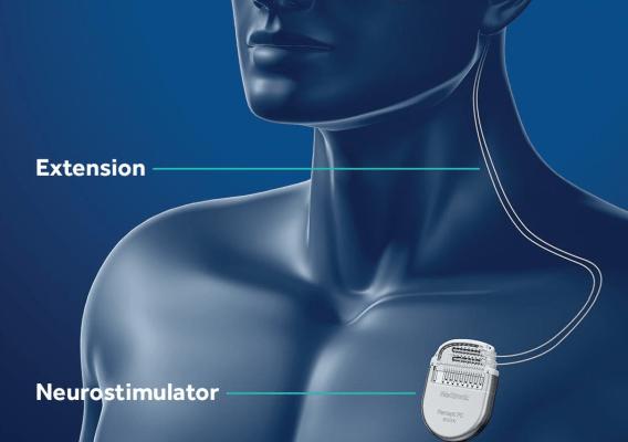 Neuromodulation DBS